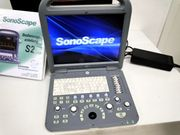 Duplex Farbdoppler mobiles Ultraschallgerät Sonoscape